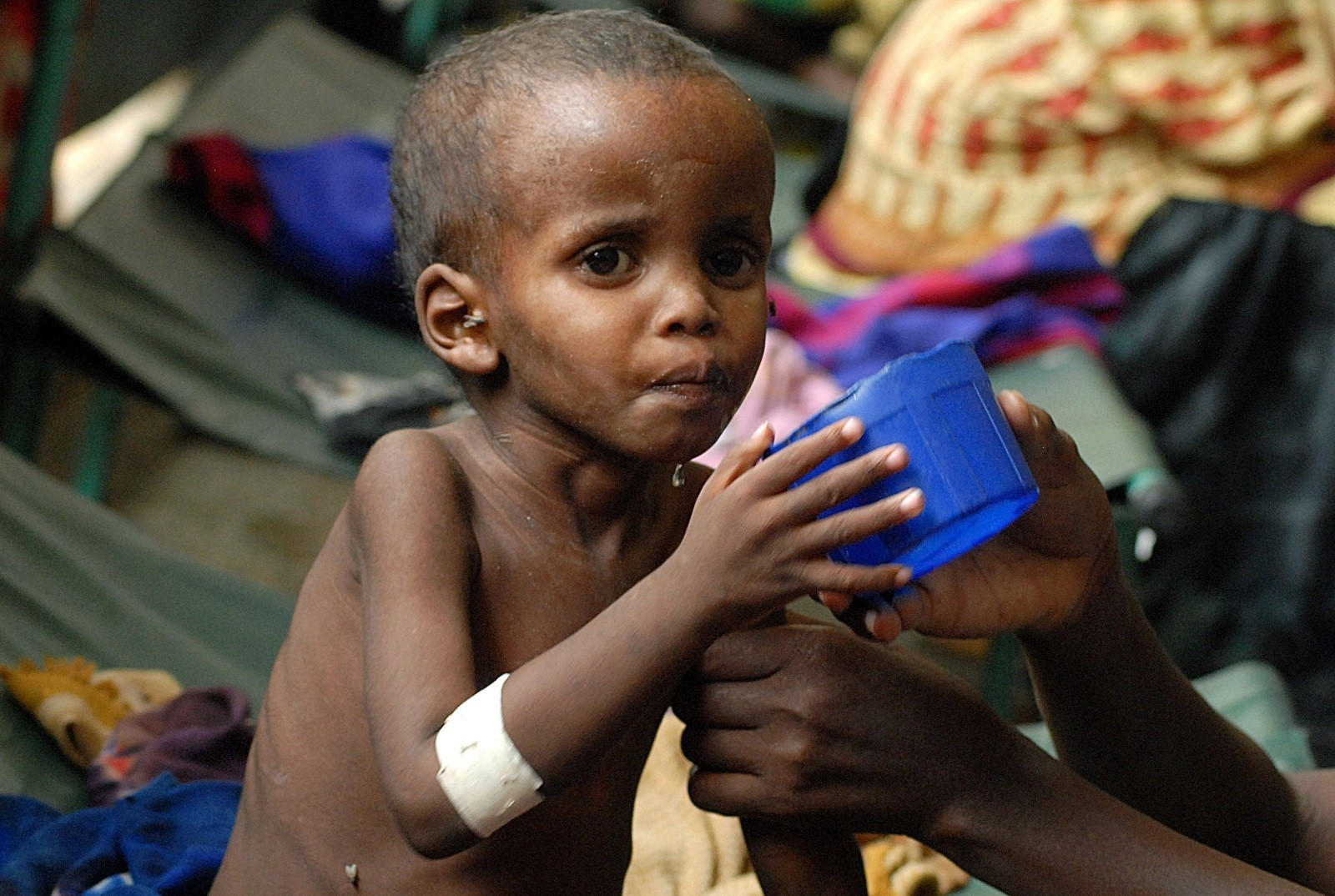 Malnutrition: global pandemic affects one third of world's ...